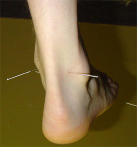 AnkleAcupuncture